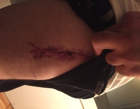 My incision - close up.